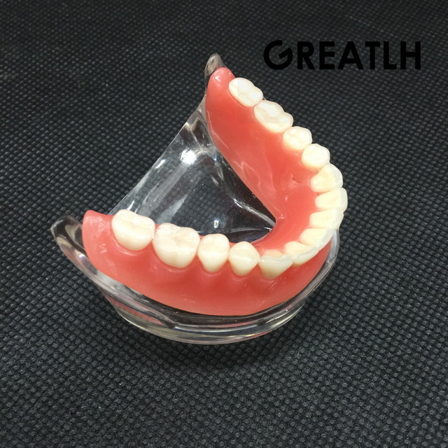 השיניים Overdenture פנים Mandibular נמוך שיניים דגם Mandibular עם שתל שיקום שן שיניים הוראת מחקר