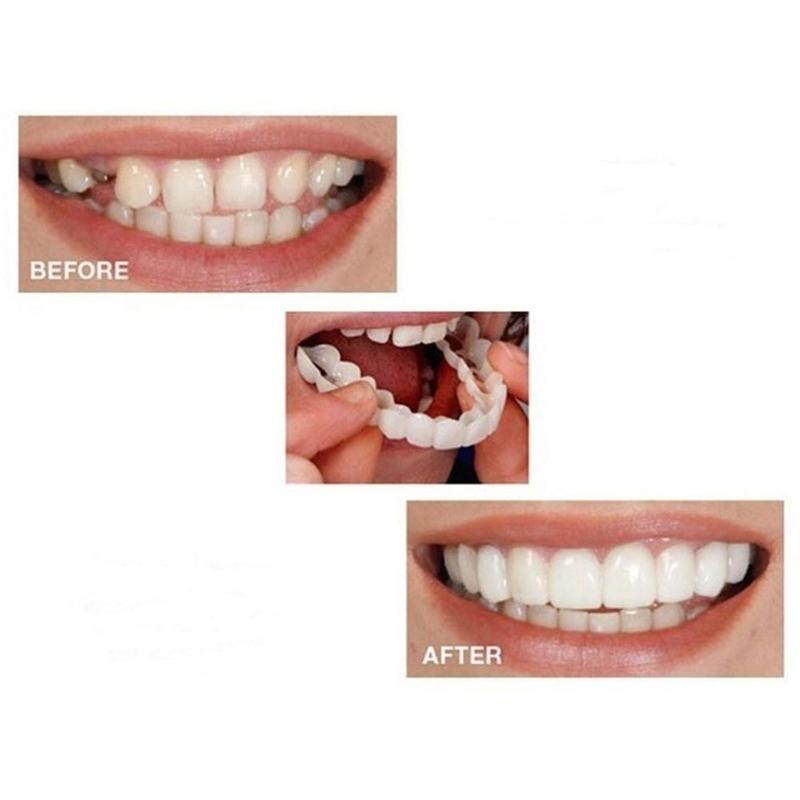 Snap On Smile Teeth Veneers Whitening Cosmetic Denture Instant Perfect Smile Teeth Fake Tooth Smile Snap Uper Teeth Only