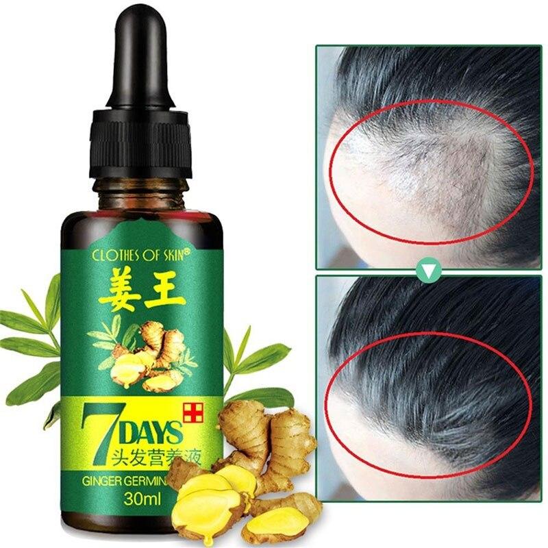 7Day имбирь зародышевый сывороточная эссенция утечки масла Treatement роста волос анти-Предотвращение выпадения волос алопеция поврежденных вол...