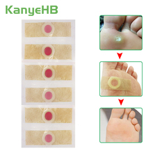 30pcs Foot Care Stickers Medical Plaster Chicken Eye Corns Patches Medical Plaster Health Care Foot Corn Removal Patch A175