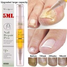 5 мл питательная ручка для ногтей удаляет грибок ногтей жидкий Уход за ногтями