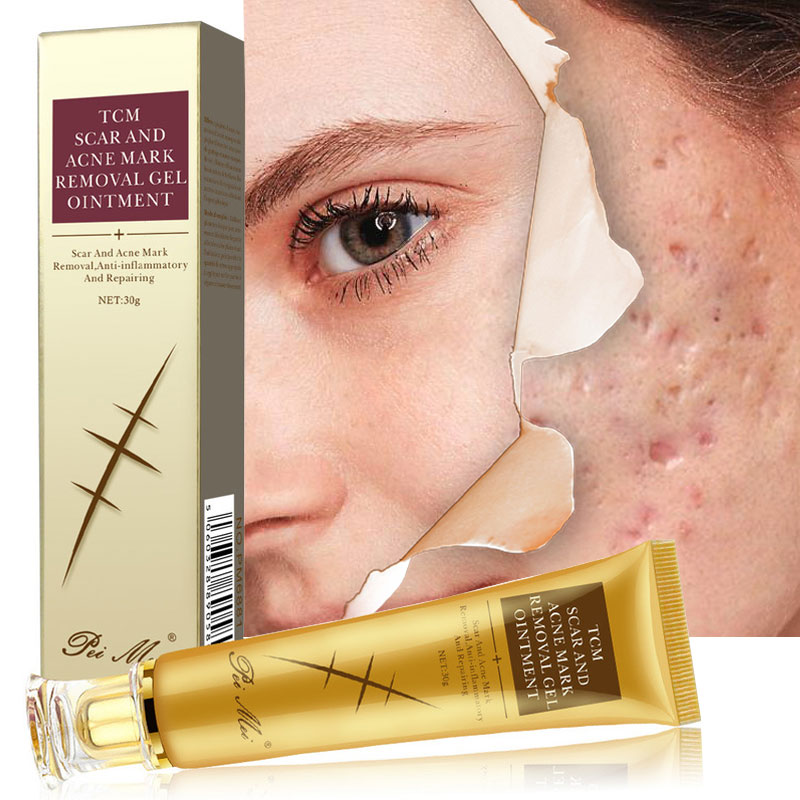 Acne Scar Removal Cream Gel Face Pimples Stretch Marks Cream Repairing Smoothing Whitening Moisturizing Body Cream Skin Care 30g-3