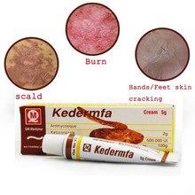 5g vietname kedermfa original óleo de cobra creme hidratante creme de mãos acne tratamento da cicatriz para o corpo rosto reparação da pele creme tslm1