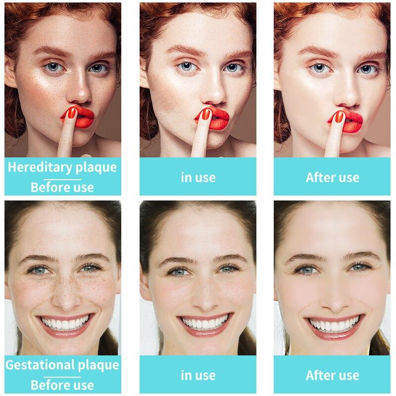 CHUMOLEE Strong Whitening Facial Cream Remove Freckle Melasma Acne Dark Pigment Spots Melanin Pimple Cream Brighten Face Cream-5