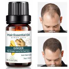 Имбирное масло жидкость против выпадения волос
