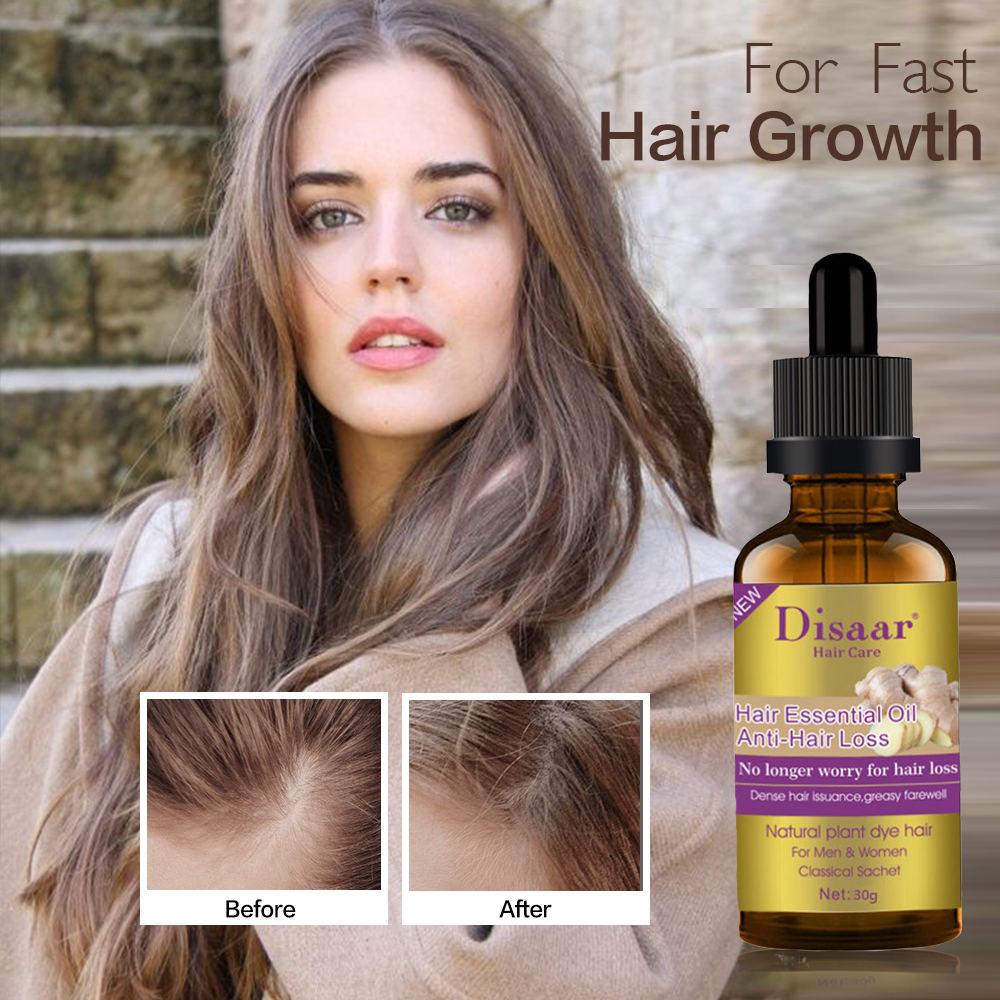 Fast Hair Growth Essence Oil Hair Treatment Anti Hair Loss Help For Men Women Hair Growth Hair Care Product Liquid 30ml