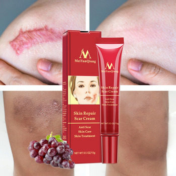 Acne Scar Removal Face Cream Acne Spots Acne Pigmentation Corrector Whitening Cream Anti Scar Stretch Marks Repair Gel Skin Care недорого