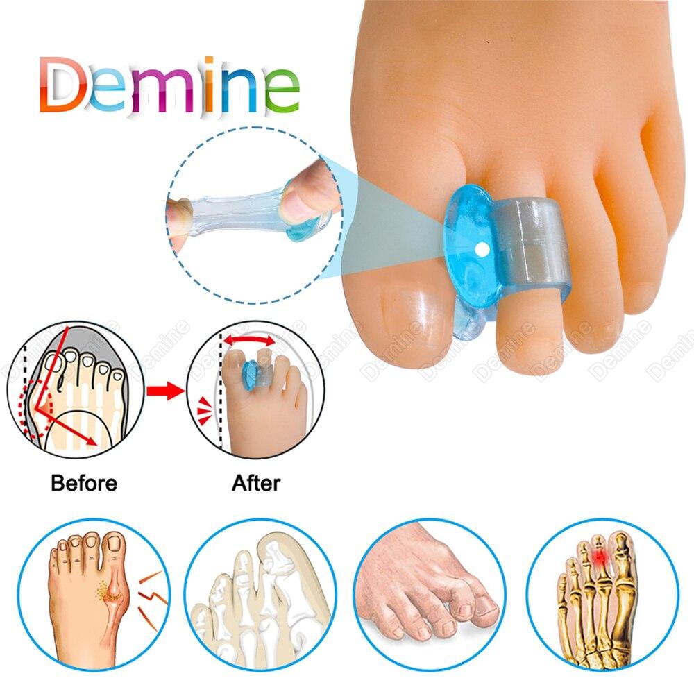 Soft Silicone Gel Toe Separator Hallux Valgus Bunion Corrector Toes Bone Straightener Adjuster Orthotic Inserts Foot Care Tool
