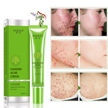 Effective Anti-Acne Cream, Acne Treatment, Fade Oil Control, Shrink Pores, Whiten Acne Moisturizing Cream, Skin Care Products