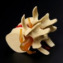 กายวิภาคกระดูกสันหลัง Lumbar Disc Herniation Anatomy การสอนการแพทย์เครื่องมือ