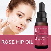 Pure Organic Rosehip Oil Antioxidantfor Scars Fine Lines Wrinkles Stretch Marks
