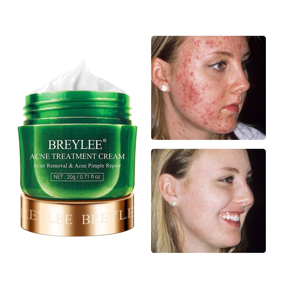 BREYLEE Anti Acne Cream Acne Treatment Facial Cream Pimple Spots Remover Serum Oil Control Shrink Pores Moisturizing Skin Care
