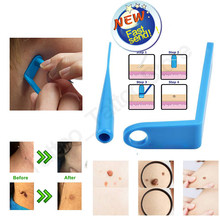 Medical Skin Tag ฆ่าผิว Mole Wart Remover Micro Band Skin Tag Removal ชุดทำความสะอาด Swabs ผู้ใหญ่ Mole Wart face Care เครื่องมือ(China)