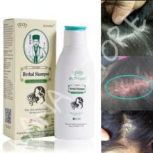 Neue Ankunft Zudaifu Haar Psoriasis Hautpflege Behandlung Dermatitis Eczematoid Komplexe Shampoo