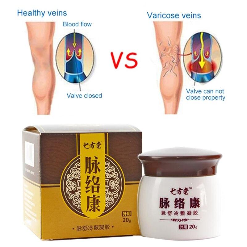 Crema per il trattamento delle vene Varicose riparazione vulite flebite massaggio allevia il gonfiore nutriente minerale olio vegetale cura del corpo 20g 1
