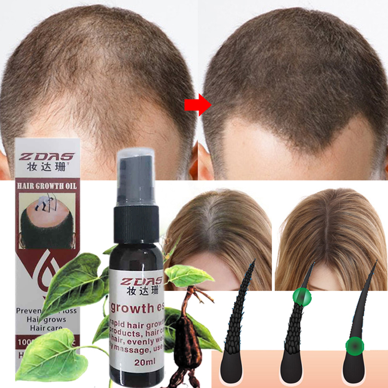 Effective Hair Growth Essence Oil Thinning Anti-hair Loss Products Hair Regeneration Anti-off Hair Care Spray Prevent Hair Loss