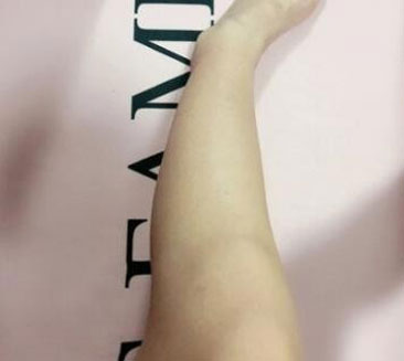 Yoxier Pearl Firming Body Lotion - Remove Stretch Marks Cream photo review