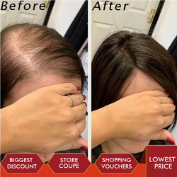 2.5x4 Inches Toupee Hair For Women Hair Toppers For Women Human Hair Clip Ins Natural Color 130% Volume Extension Rosa Queen