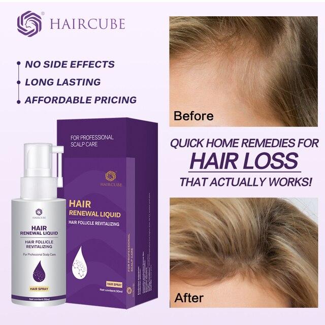 Hair Growth Essence Oil Anti Hair Loss for Hair Growth Treatment for Hair Loss Thickner Hair Tonic Hair Serum Hair Care Products