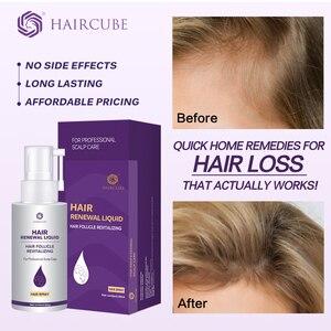 Image 1 - 머리카락 성장 에센스 오일 안티 머리카락 손실 머리카락 성장 치료에 대한 탈모 Thickner 헤어 토닉 헤어 세럼 헤어 케어 제품