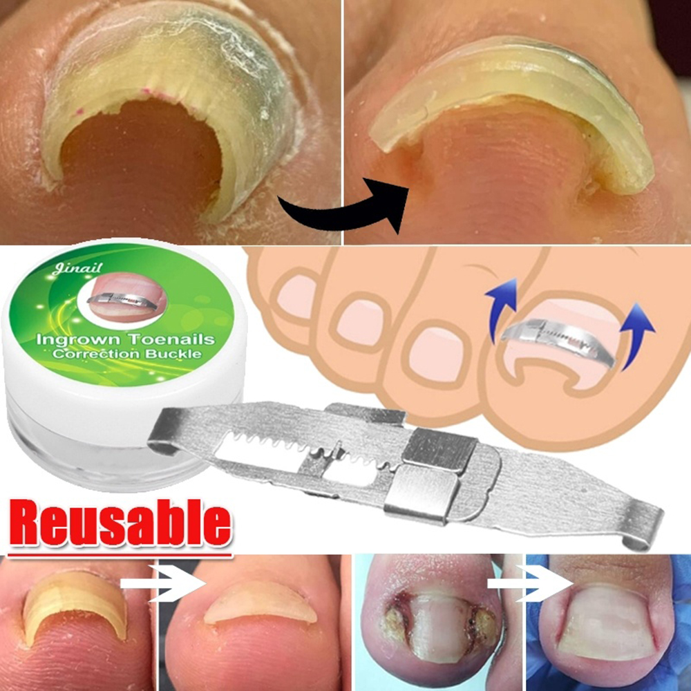 New Stainless Steel Toe Nail Correction Tool Pedicure Nail Care Hook Toe Nail Straightening Clip Armor Corrector Patch Tool Set