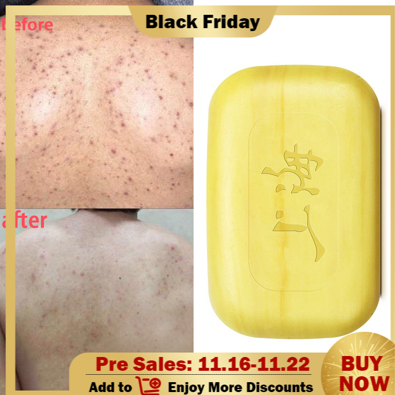 Шанхай сера мыло контроль жирности угри лечение удаление черных точек средство для удаления мыло 85г отбеливание очищающее средство китайский традиционный уход за кожей