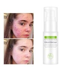 VIBRANT GLAMOUR Tree Oil Acne Treatment Face Serum Cream Shrink Pores Anti Remov