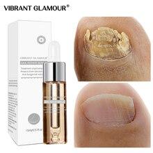 Vibrantglamur грибковый Уход за ногтями, сыворотка для ухода за ногами, гель для удаления грибка для ногтей, анти-инфекционный паронихический онихомикоз