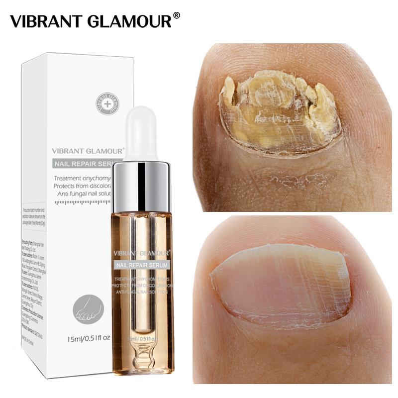 VIBRANTGLAMOUR Fungal Nail Treatment Feet Care Serum Foot Fungus Removal Gel Anti Infection Paronychia Onychomycosis