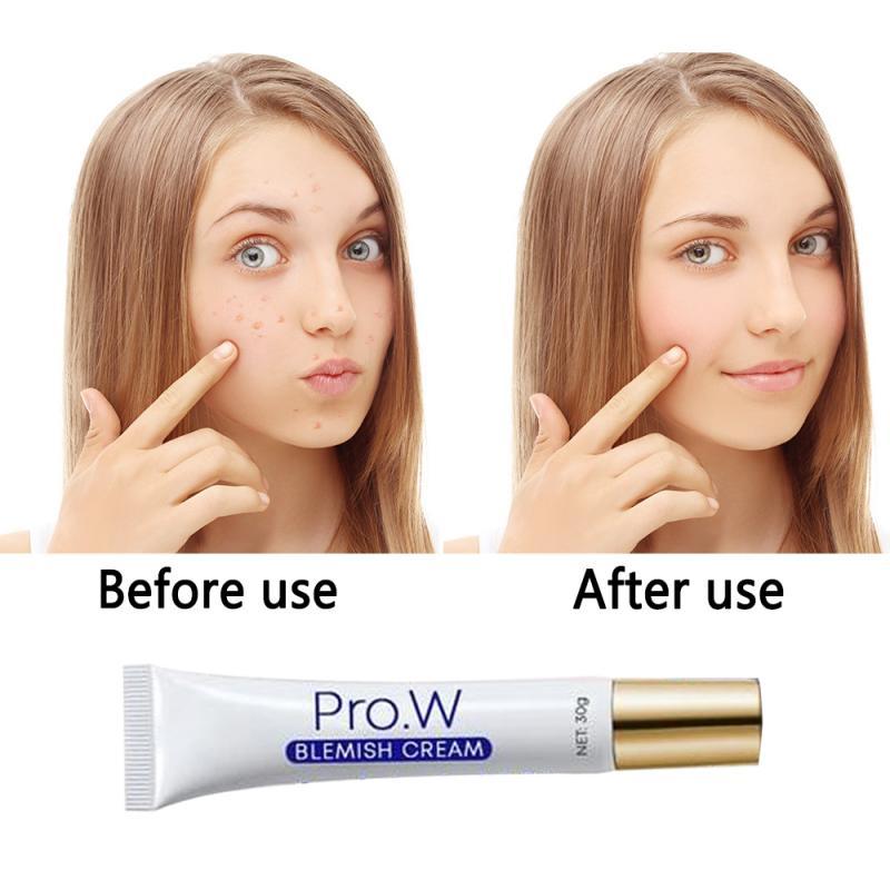 Anti Blemish Facial Cream Natural Organic Blemish Cream Anti-acne Cream Non-irritating Control Moisturizing Facial Skin Care 1