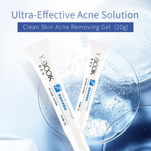 YOUNGBOOK Acne Treatment Face Cream Blackhead Repair Gel Oil Control Shrink Pores Scar Removal Whitening Facial Skin Care 20g