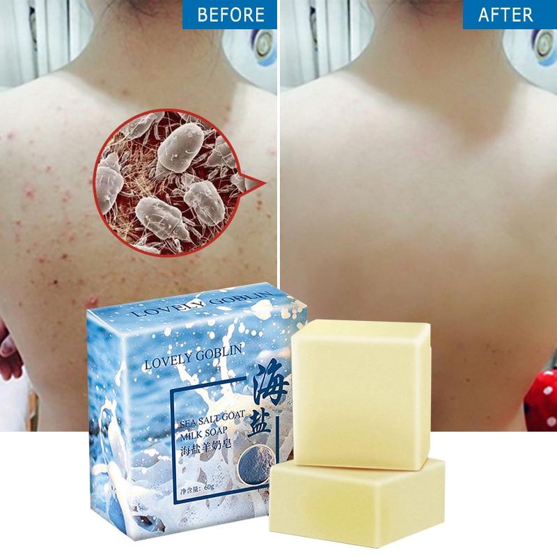 65g Sea Salt Soap Removal Pimple Pores Acne Treatment Soap Moisturizing Oil Control Goat Milk Soa Face Care Wholesale TSLM1