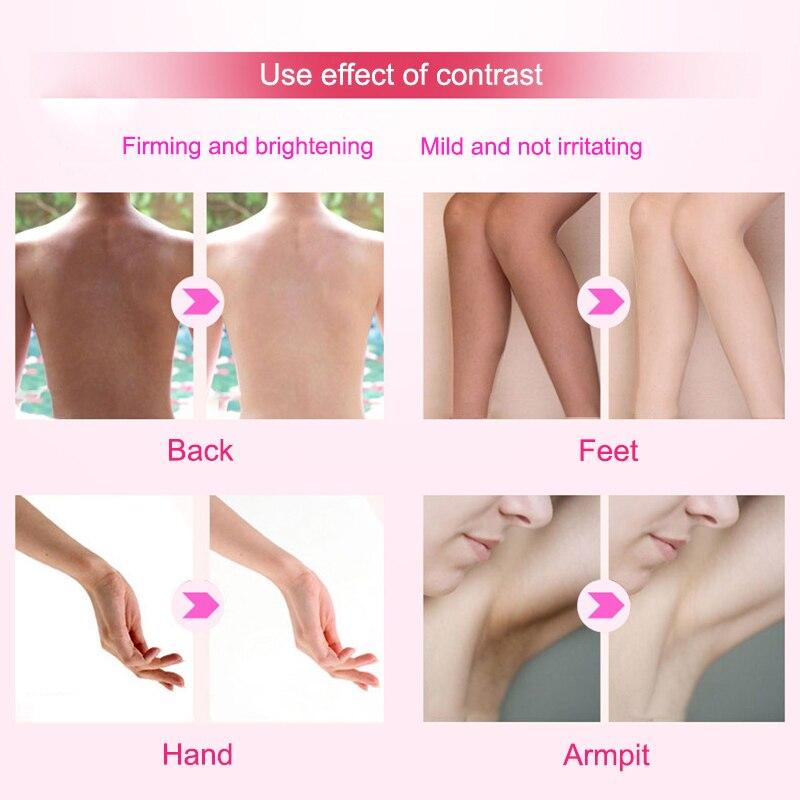 Ручная работа мыло кожа осветление и отбеливание лицо руки тело мыло для женщин FRE-Drop