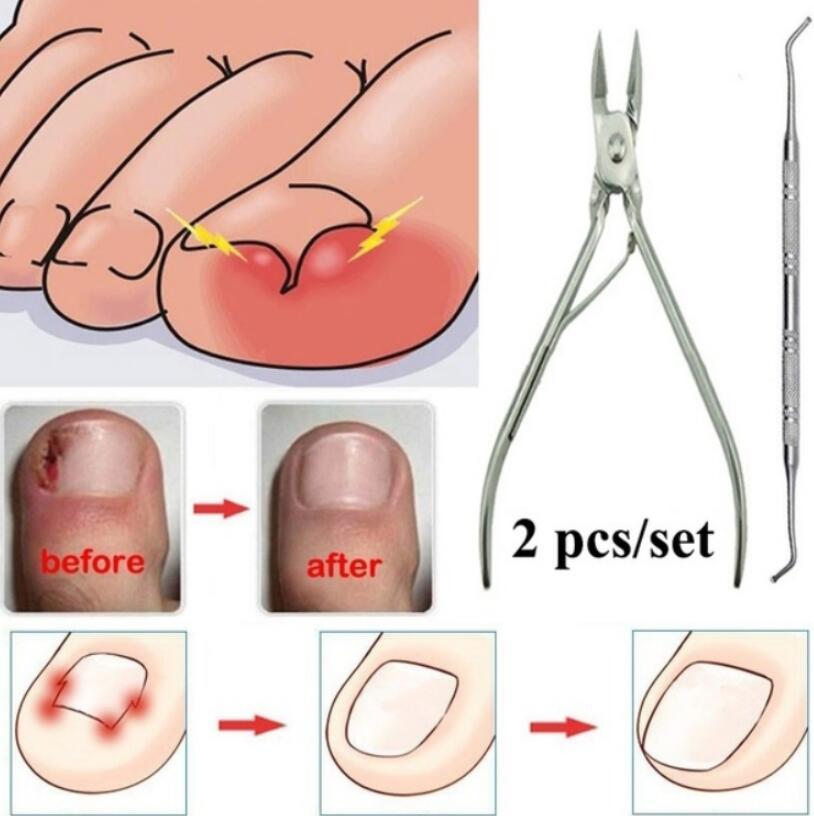 Для вросших ногтей, педикюра, инструмент для ухода за ногами, коррекция ногтей, клипер, резак для ортодонтического акрикса, для удаления оме...