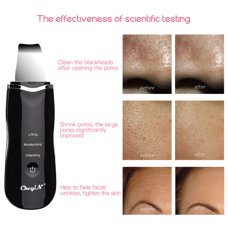 Ultrasonic Ion Deep Clean Skin Scrubber Pore Cleaner Exfoliating Blackhead Remover USB Rechargeable Face Lift Peeling Shovel P53