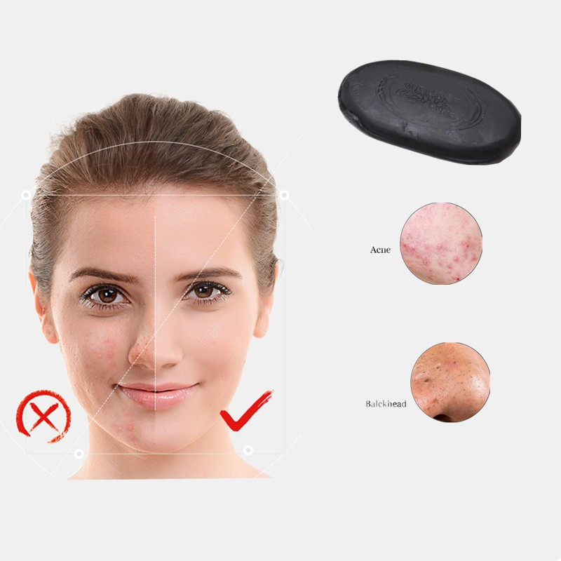 Beauty Removal Soap Activated Carbon Whitening Skin Cleaning Soap For Skin Black Spot, Acne, Black Soap Nursing Skin Tourmaline