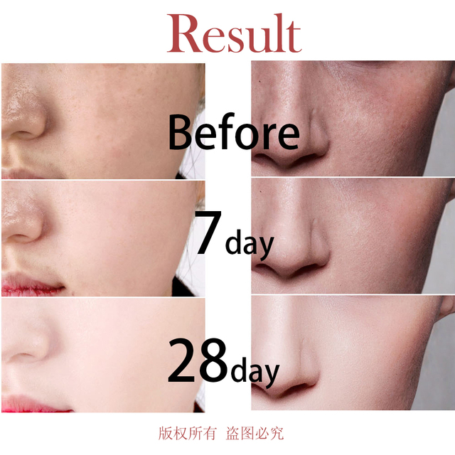 Fonce Arbutin Whitening Skin Facial Essence 28 Bottle Serum whitening No injection moisturizing Reduce Blackness Detoxification