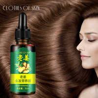 New Herbal Hair Growth Anti Hair Loss Liquid Fast Powerful Hair Growth Essence Treatment Preventing Hair Loss Essential Oil