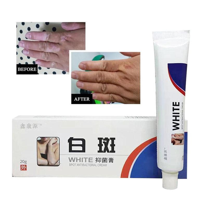 Vitiligo Leukoplakia Disease Treatment Ointment White Spot Disease Repair Cream Chinese Medical Pigment Melanin Skin Care Balm
