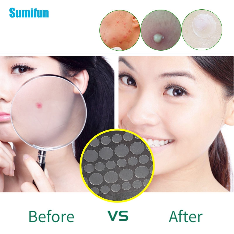36pcs/1bag Acne Patch Hydrocolloid Pimple Acne Dots Invisible Spot Cover Tag Remover Invisible Sticker Pimple Remover Tool C1736