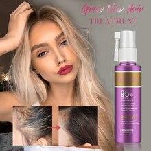 Масло для лечения роста волос против выпадения волос эссенция быстро густые волосы брови поддержка естественных здоровых волос лечение для женщин
