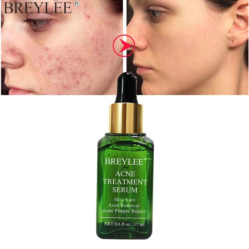 BREYLEE Acne Treatment Face Serum Tea Tree Fades Acne Marks Remover Scar Shrink Pores Whitening Moisturizing Facial Essence 17ml