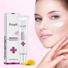 Crème réparatrice d'acné à la mangue, Anti-taches, traitement de l'acné, cicatrice, points noirs, rétrécissement des Pores, hydratation du visage, soins de la peau, TSLM1
