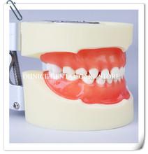 Dental Pediatric preactice teeth model M7014 Children tooth model Dental Education Tooth Model Standard Children teeth model cheap hooky Resin Standard Child Teeth Model 24pcs soft Gum