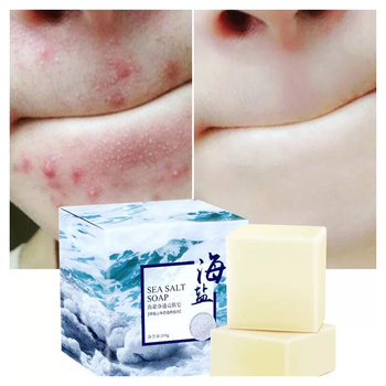 Sea Salt Soap Removal Pimple Pore Acne Treatment Cleaner Moisturizing Oil-Control Goat Milk Soap Face Care Wash Basis Soaps 100g rose soap 100% natural handmade 120g hair skin beauty whitening moisturizing cleaner antibacterial acne treatment
