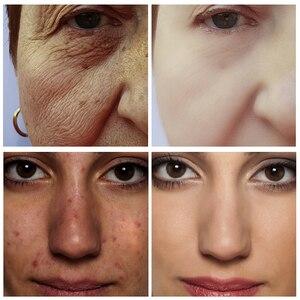 Image 2 - Canlı GLAMOUR Serum proteini kırışıklık karşıtı yüz serumu kollajen beyazlatma nemlendirici özü Anti alerji maskesi Toner gözenek küçültmek