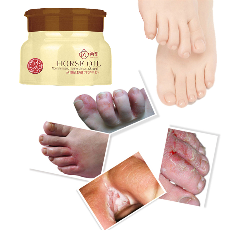 80g Horse Oil Foot Cream Heel Cream For Feet Mask Itch Blisters Anti Chapping Peeling for Foot Cream Care 5