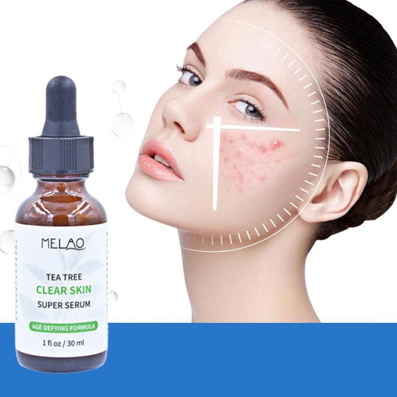 30ml TeaTree Face Serum Repair Acne Treatment Facial Serum Scar Oil Control Moisturizing Shrink Pore Face Skin Care