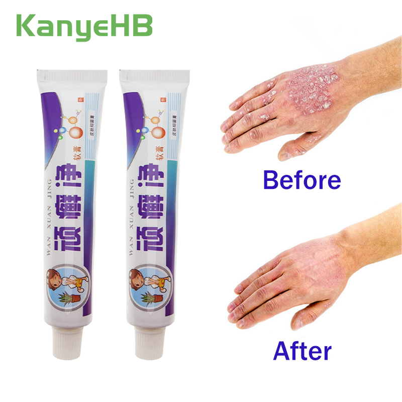 1pcs Psoriasis Creams Chinese Herbal Pain Relief Eczema Ointment Pruritus Dermatitis Itching Medical Plaster Skin Care S016