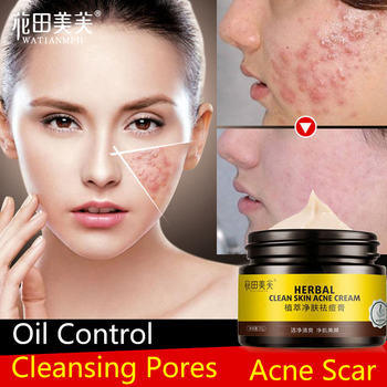 green cover yiqi beauty whitening cream for face remove frekcle in 7 days anti spot face cream WATIANMPH Herbs cream Anti Acne Scar Face Cream Oil-control Repair acne cream face care Whitening cream 30g